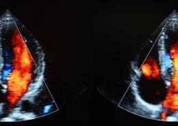 Farbduplex Echokardiographie